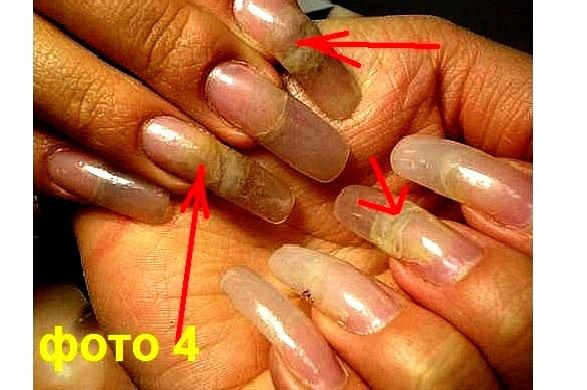 Почему на гелевых ногтях отслойки